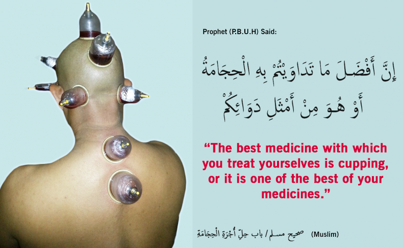 Cupping (Hijama) – From the prophetic medications 1